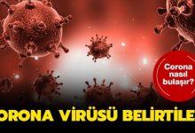 Photo of Corona Virüs belirtileri nelerdir, nasıl buluşır? Corona Virüsünden korunmanın yolları nelerdir?